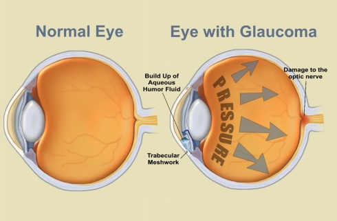 July is Glaucoma Awareness Month